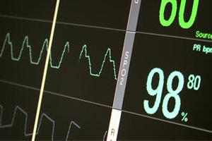 Electrocardiograph Technician (EKG)